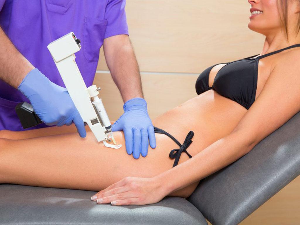 Эстетические несовершенства, с которыми помогает справиться мезотерапия тела